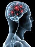 Mal de tête/migraine Image stock