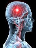 Mal de tête/migraine Photos stock