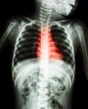 Maladie cardiaque congénitale, maladie cardiaque rhumatismale (corps de rayon X d'enfant et de couleur rouge sur le secteur de co Photographie stock libre de droits