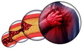 Maladie cardiaque humaine illustration libre de droits