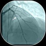 Maladie de l'artère coronaire Photos libres de droits