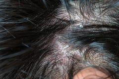 Maladies de la peau, sur le cuir chevelu photos libres de droits