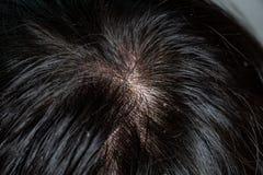 Maladies de la peau, sur le cuir chevelu photo stock
