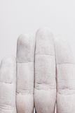Maladies de Raynaud images stock
