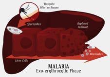 Malarian Plasmodiumlivcirkulering: Leverinfektion, vektorillustration Royaltyfria Bilder
