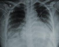 Malattia cardiaca fotografia stock