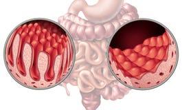 Malattia celiaca celiaca dell'intestino illustrazione di stock