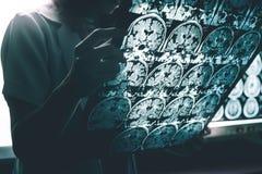 Malattia del ` s di Alzheimer sul RMI Immagine Stock