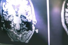 Malattia del ` s di Alzheimer sull'ippocampo di RMI del film atophy Fotografia Stock