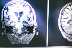 Malattia del ` s di Alzheimer sull'ippocampo di RMI del film atophy Immagini Stock