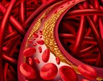 Malattia dell'arteria illustrazione vettoriale