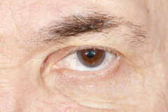 Malattia dell'occhio Fotografie Stock