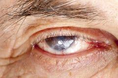 Malattia dell'occhio Immagini Stock