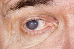 Malattia dell'occhio Fotografia Stock Libera da Diritti