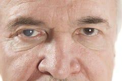 Malattia dell'occhio Fotografia Stock
