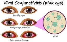 Malattia dell'occhio umana con la congiuntivite virale Immagini Stock