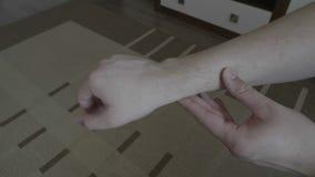 Malattia della pelle dermatologica del concetto medico di problema di pelle del giovane braccio maschio - video d archivio