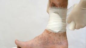 Malattia della pelle umana Le mani delle persone falciano con la fasciatura, intorno alle cicatrici, ulcere e punti dell'età, pos stock footage
