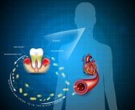 Malattia dentaria illustrazione vettoriale