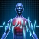 Malattia di cuore Fotografie Stock