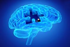 Malattia di demenza e una perdita di funzione e di memorie del cervello Immagini Stock Libere da Diritti