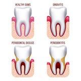 Malattia di gomma umana, emorraggia delle gomme Prevenzione dentaria, infographics orale del dente di vettore di cura illustrazione vettoriale
