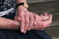 Malattia di pelle di Sceriosis Fotografia Stock Libera da Diritti