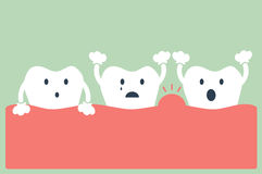 Malattia periodentale del dente illustrazione di stock