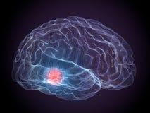 Malattie del cervello degeneranti di Parkinson fotografia stock libera da diritti