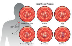 Malattie della corda vocale Immagini Stock