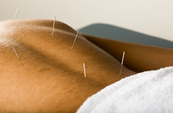 Male acupuncture patient. Male patient receiving acupuncture treatment to his back Royalty Free Stock Photography