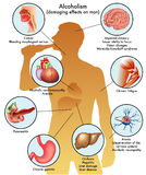 Male alcoholism. Medical illustration of the damage caused by alcohol on man Stock Photo