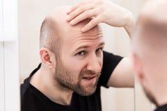 Bald man looking mirror at head baldness and hair loss. Male alopecia or hair loss concept - adult caucasian bald man looking mirror for head baldness treatment royalty free stock photography