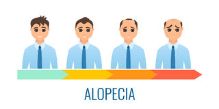 Male alopecia stages set. Stock Photo