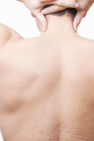Male back with stretch marks Royalty Free Stock Images