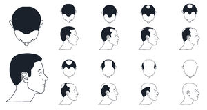 Male baldness icons Stock Image