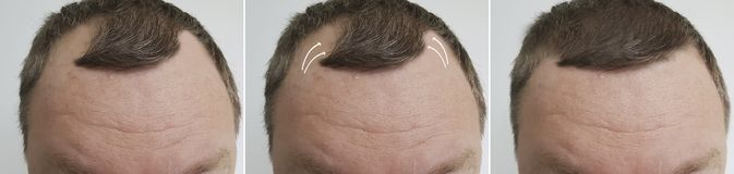 Male baldness before and after treatment transplantation. Male baldness before after treatment transplantation stock photo