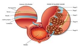 Male bladder Cancer. Medical illustration of stages  of the male bladder cancer Stock Photography
