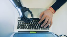 Male cyborg with artificial robotic hand, bionic prosthesis working on computer. One man works with his laptop while wearing a bionic prosthesis