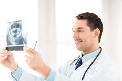 Male doctor or dentist with x-ray Royalty Free Stock Photo