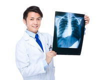 Male doctor hold a x ray film Stock Images