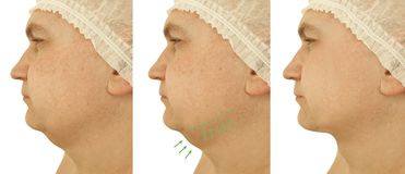 Male double chin removal before collage after treatment procedures. Male double chin removal before and after procedures treatment collage stock photography