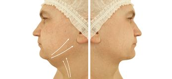 Male double chin removal before after treatment procedures. Male double chin removal before and after procedures treatment stock photography