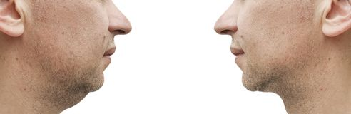 Male double chin before and after treatment slimming. Male double chin before and after treatment, slimming royalty free stock photo