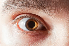 Male eye with mydriatic pupil. Scared male eye with mydriatic pupil macro stock image