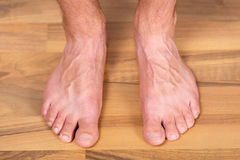Male feet nails Stock Photos