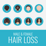Male and female hair loss set. Male and female pattern hair loss set. Stages of baldness in men and women. Alopecia infographic medical design template. Hair royalty free illustration
