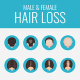 Male and female hair loss set Royalty Free Stock Photos