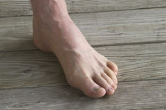 Male Foot With Prominant Veins Royalty Free Stock Image