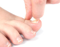 Male foot and toes with damaged nail Stock Image